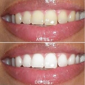 Como fazer Clareamento Dental Caseiro 2