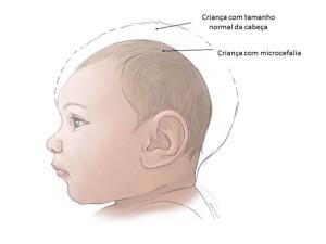 O que e a Microcefalia e Como Evitar 2