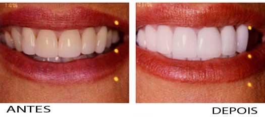 Estetica Dental Antes E Depois Do Tratamento Estetica Nos Dentes