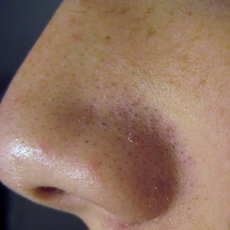 Estetica como eliminar cravos do nariz