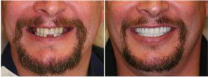 preco para fazer implantes dentarios 2